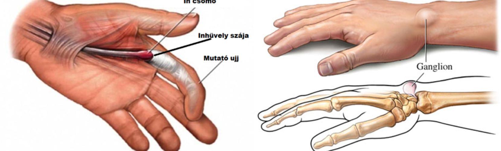 könyök artrózis ahol kell kezelni