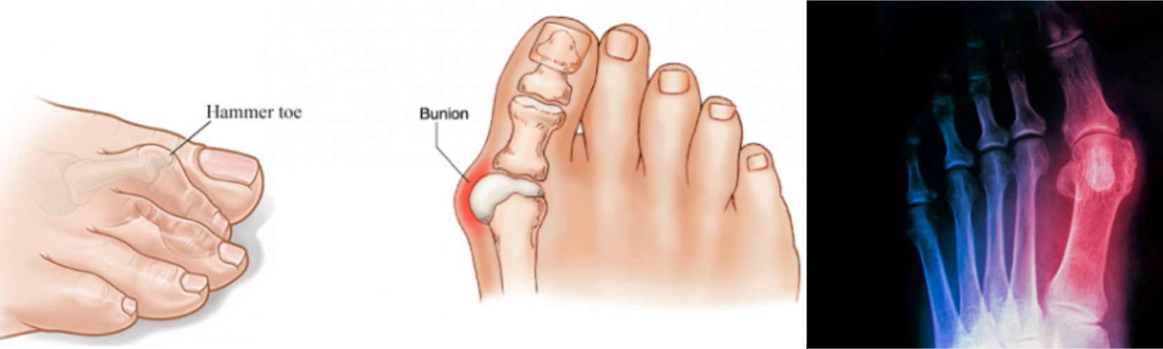 artrosis a láb kezelése