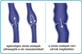 Herevisszértágulat   Urológiai Klinika