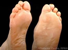 szemölcs cukorbeteg láb